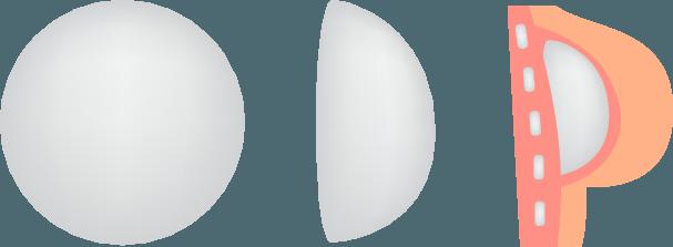 round-breast-implant-shape-profiles