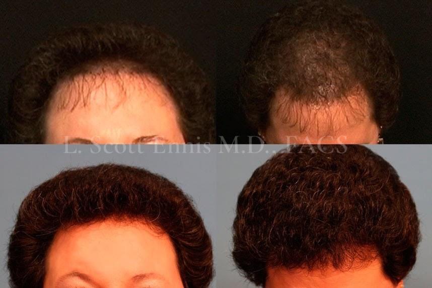 hair-transplant-before-after-scott-ennis-md-destin-palm-beach-313567d (2)