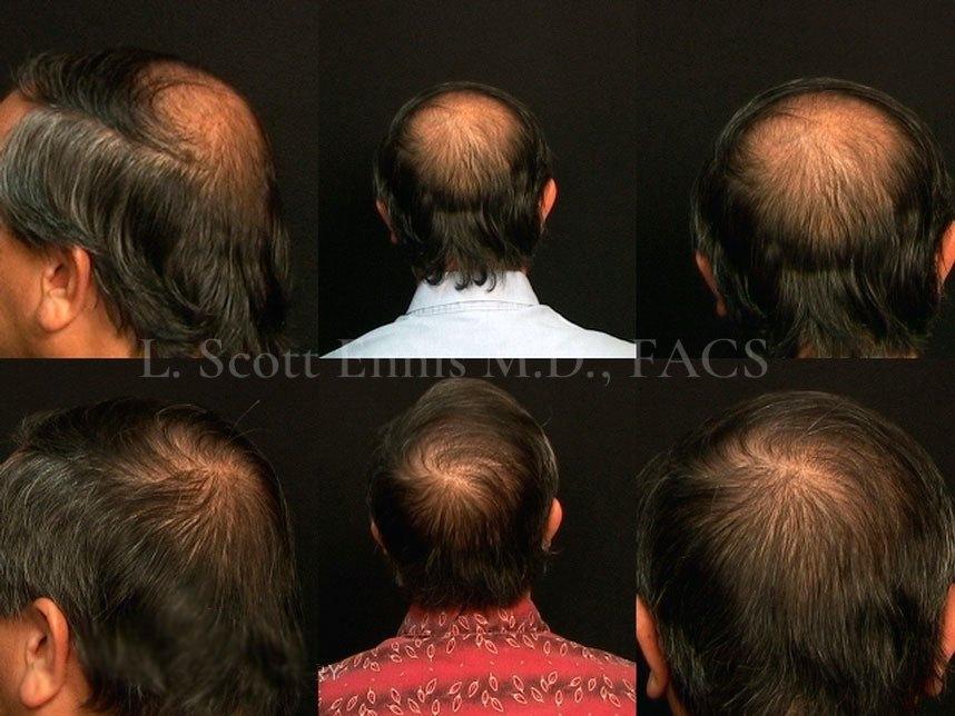 hair-transplant-before-after-scott-ennis-md-destin-palm-beach-314567d