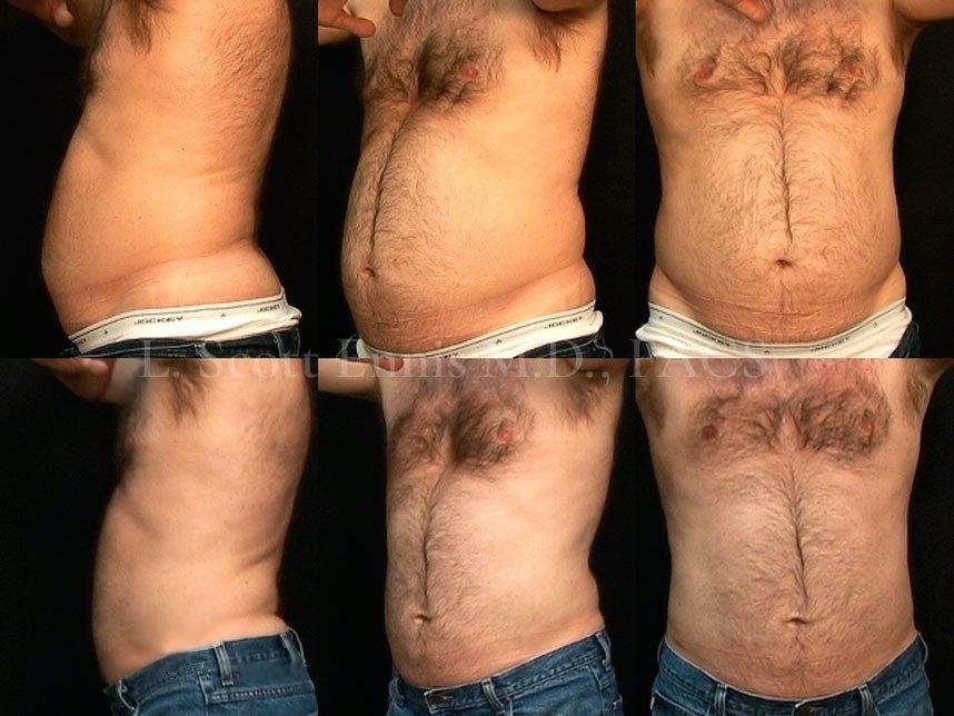 liposuction-before-after-scott-ennis-md-destin-palm-beach-360c9f0 (1)