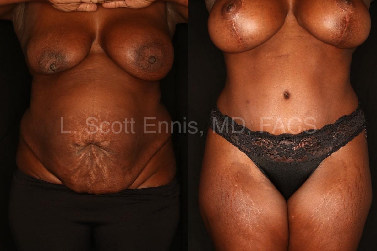 Before-and-After-Ennis-Plastic-Surgery-Palm-Beach-Boca-Raton-Destin-Miami Florida